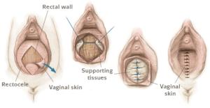 traitement rectocèle femme