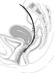 dessin traitement rectocèle